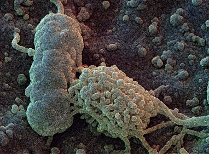 Food bacteria sem