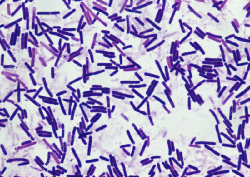 Gram positive stain of Clostridium botulinum