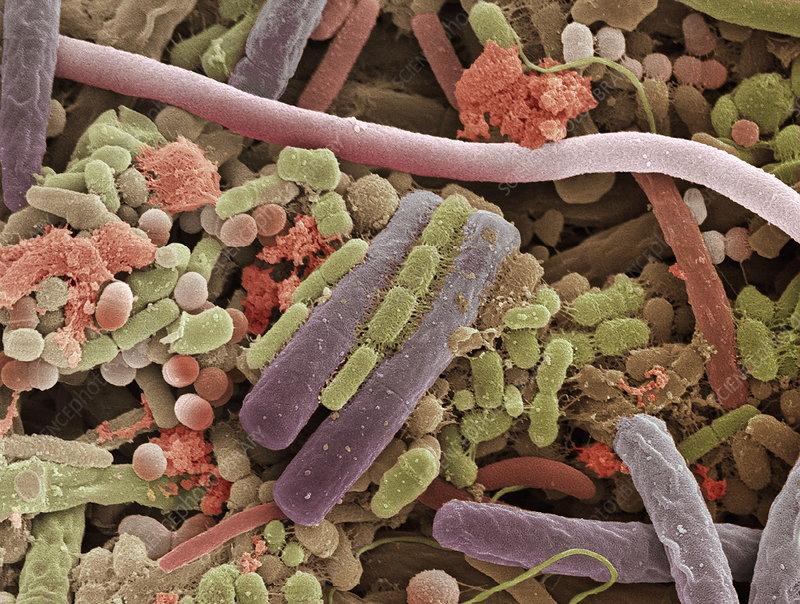 Tongue bacteria, SEM