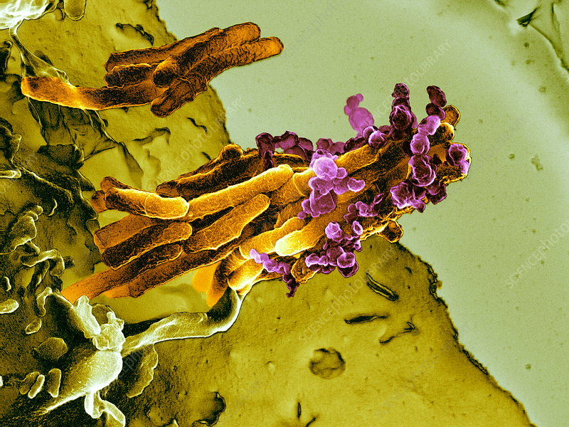Bacteria infecting a macrophage, SEM
