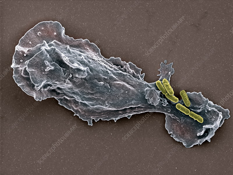 Bacteria and neutrophil cell, SEM
