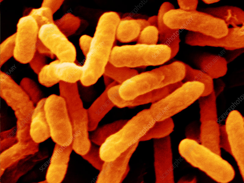 Enterobacter sakazakii, sumber:http://sciencephoto.com/images/