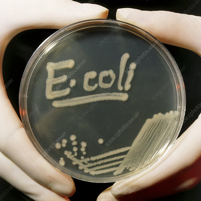 Petri dish culture of E.coli bacteria