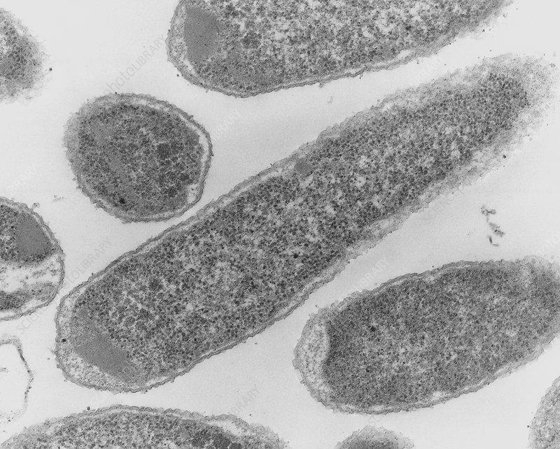how to catch e coli