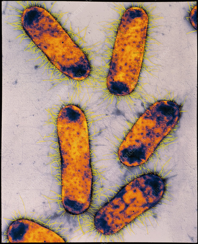 Coloured TEM of Escherichia coli bacteria