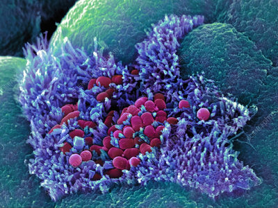 Coli bacteria sem