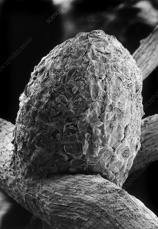 Nitrogen-fixing root nodule of clover plant