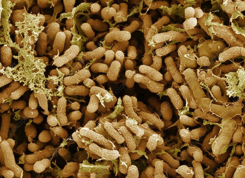 Nitrogen fixing bacteria sem