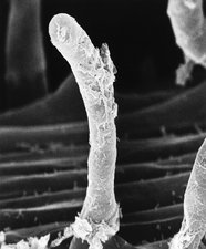Nitrogen-fixing bacterium on pea root