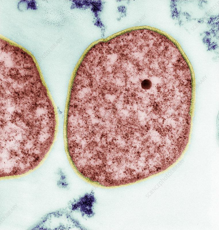 Sulfolobus archaea, TEM
