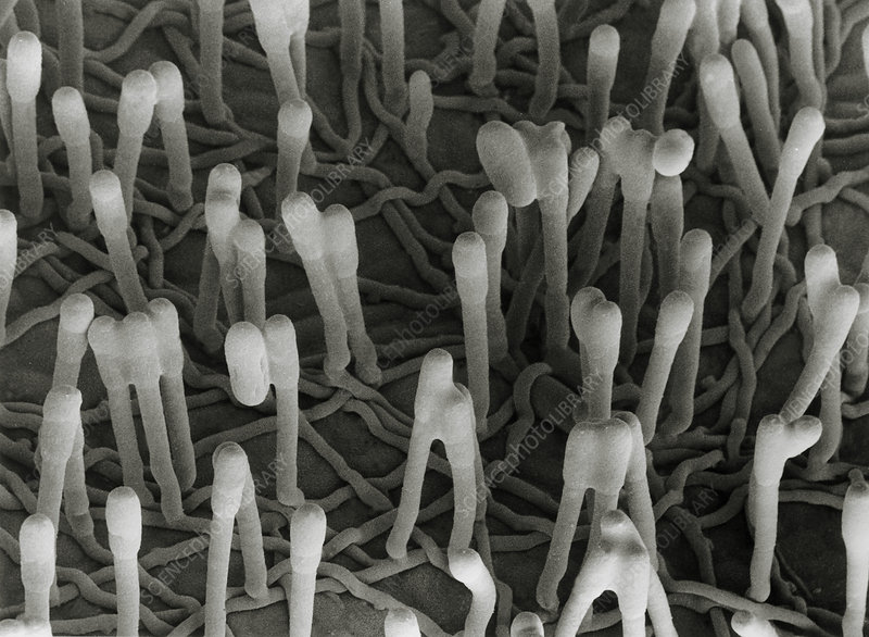 SEM of pathogenic fungus Erisyphe pisi