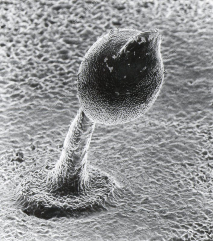SEM of a spore tower of slime mould
