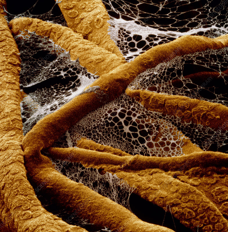 False-col SEM of tangled hyphae of fungus