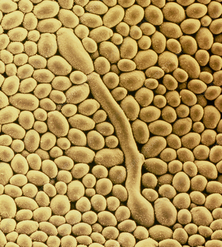 Yeast cells of fungus, Candida albicans