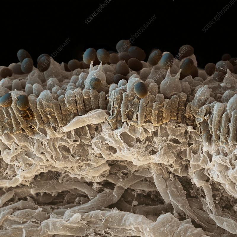 Fungal spores, SEM - Stock Image B250/1236 - Science Photo ...