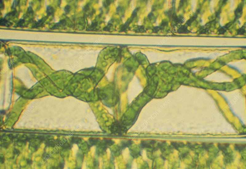LM of filamentous green algae Spirogyra