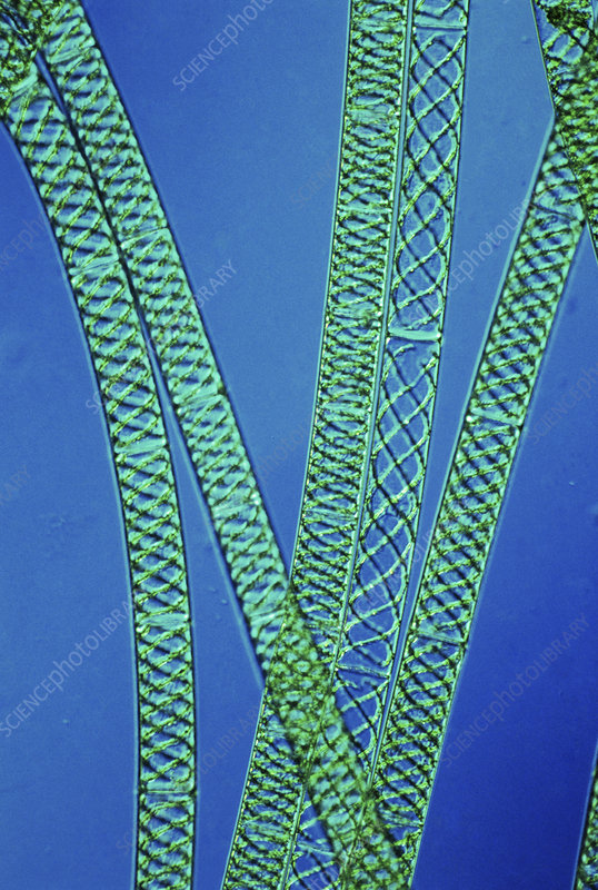 Filaments of Spirogyra algae