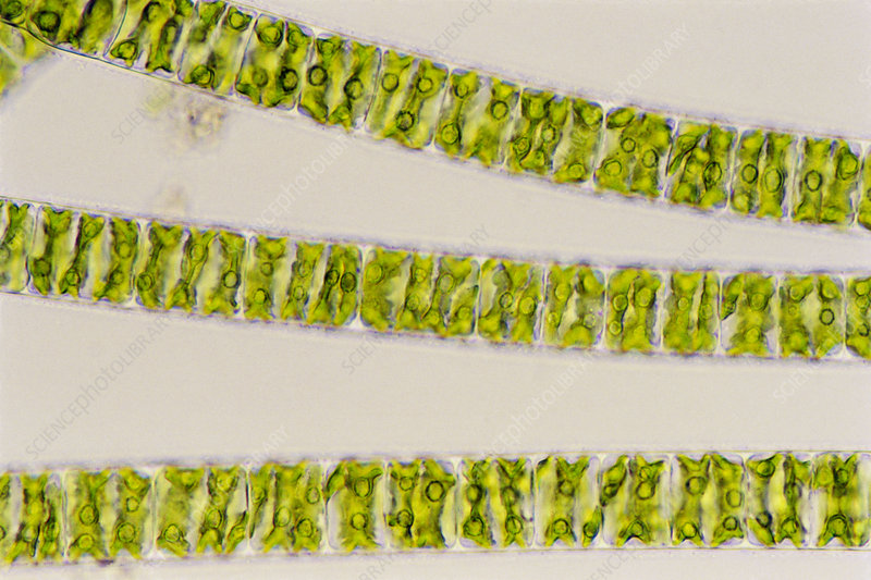 Filaments of Spirogyra alga