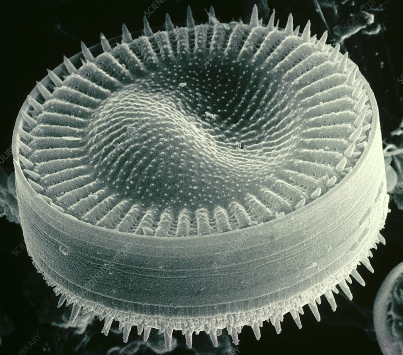 SEM of brackish water diatom