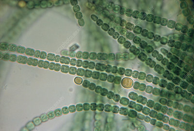 Light micrograph of Anabaena