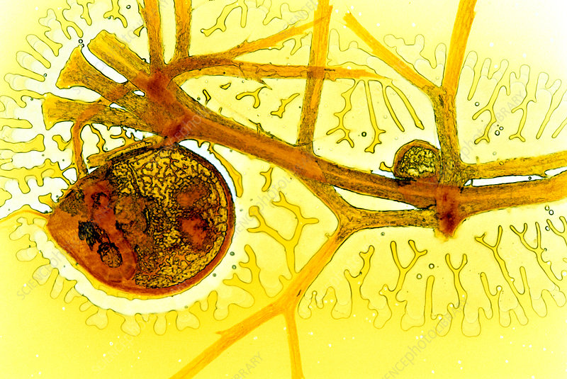 Bladderwort bladder, light micrograph
