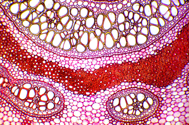 Bracken rhizome, light micrograph