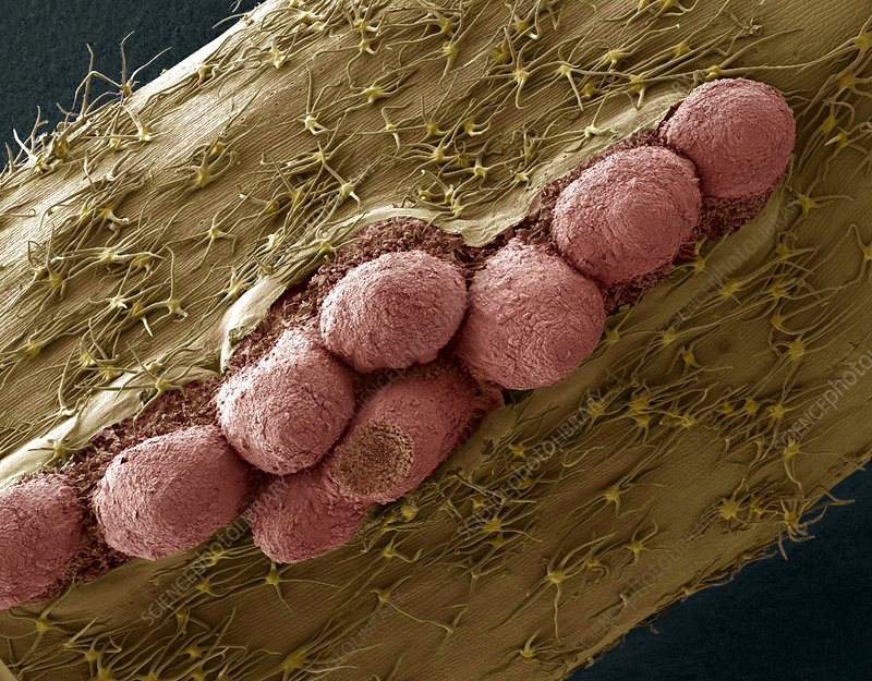 Adventitious roots of ivy, SEM