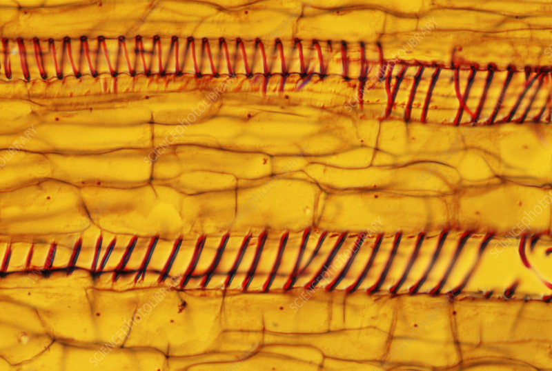Pumpkin xylem tissue