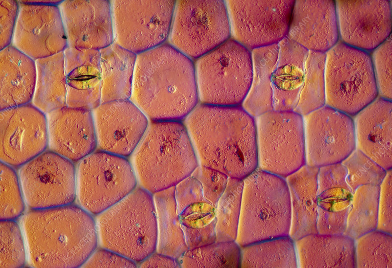 LM of epidermis cells of Tradescantia