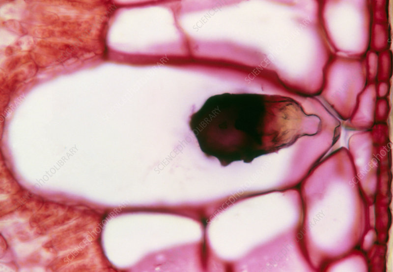 Lithocyst in a fig leaf cell