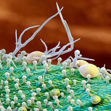 Rosemary leaf surface, SEM