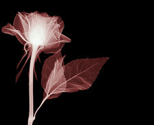 Rose, X-ray