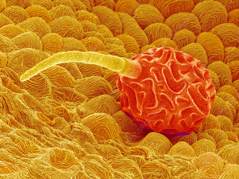Anther gland cell, SEM