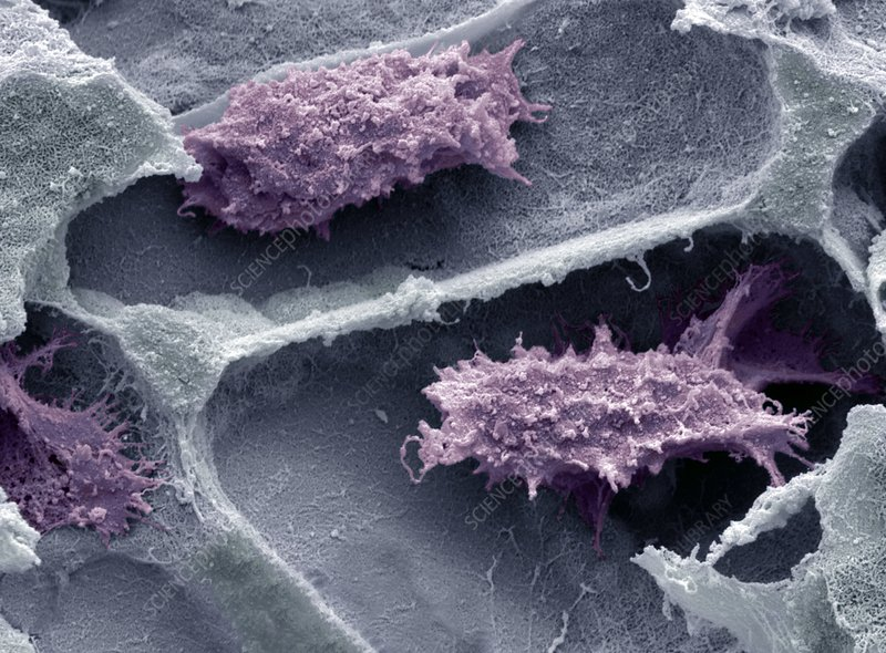 Osteoclasts in bone lacunae, SEM