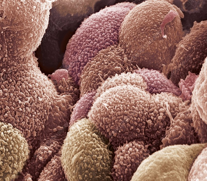 Ovarian cancer cells, SEM
