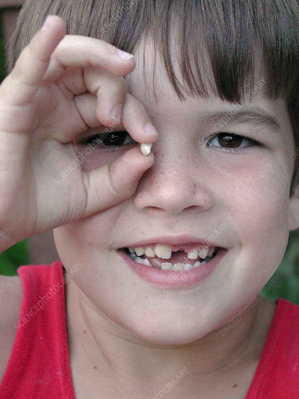 Boy with Baby Tooth