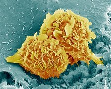 Bone cancer cells, SEM