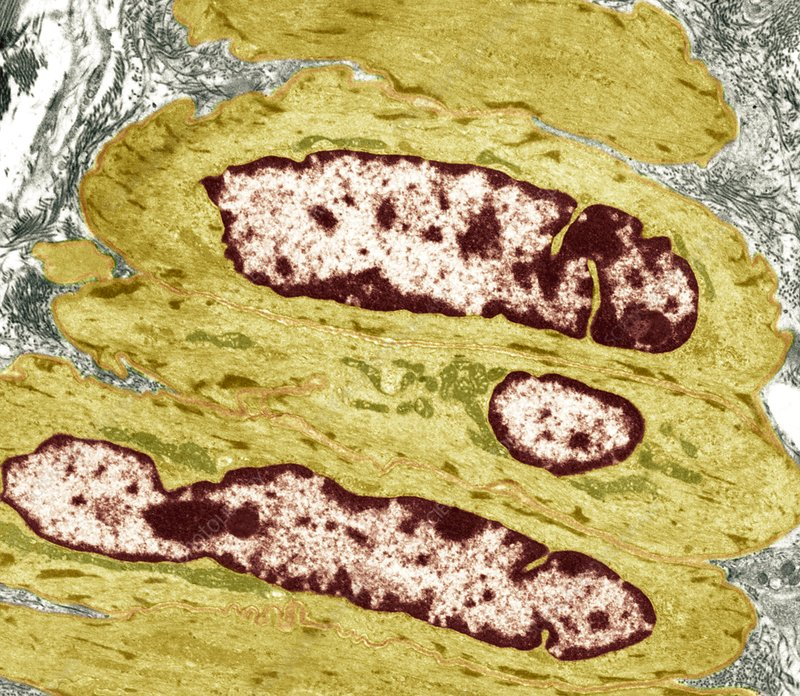 Intestinal smooth muscle cells, TEM