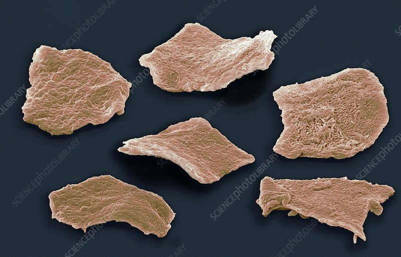 Cheek squamous cells, SEM