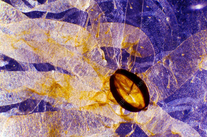 Caterpillar spiracle, light micrograph