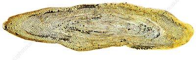 Eel scale, light micrograph