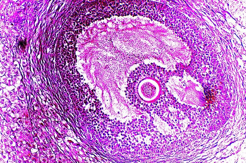 Graafian follicle, light micrograph