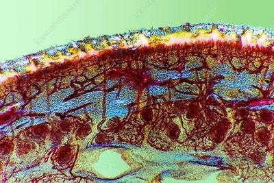 Foot skin tissue, light micrograph