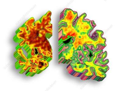 Alzheimer's disease, artwork