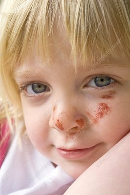 Girl with a grazed face