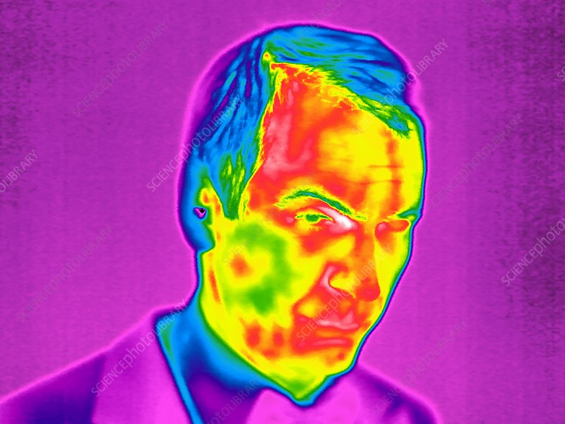 Man's face, thermogram