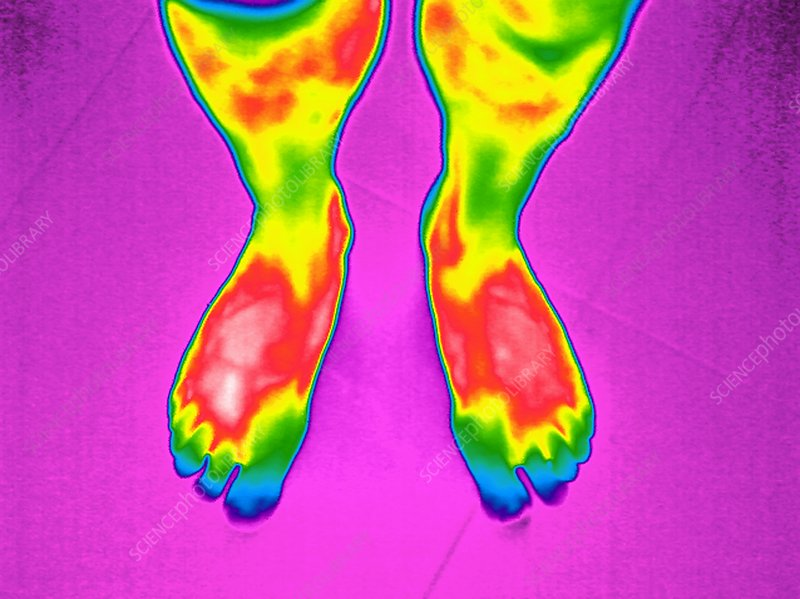 Feet, thermogram