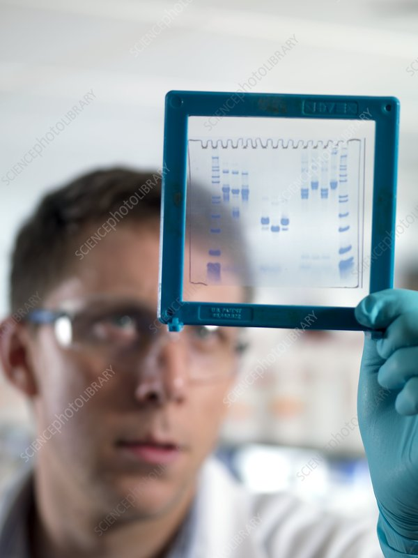 Electrophoresis gel analysis