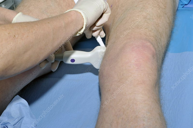 Ultrasound assessment of varicose veins