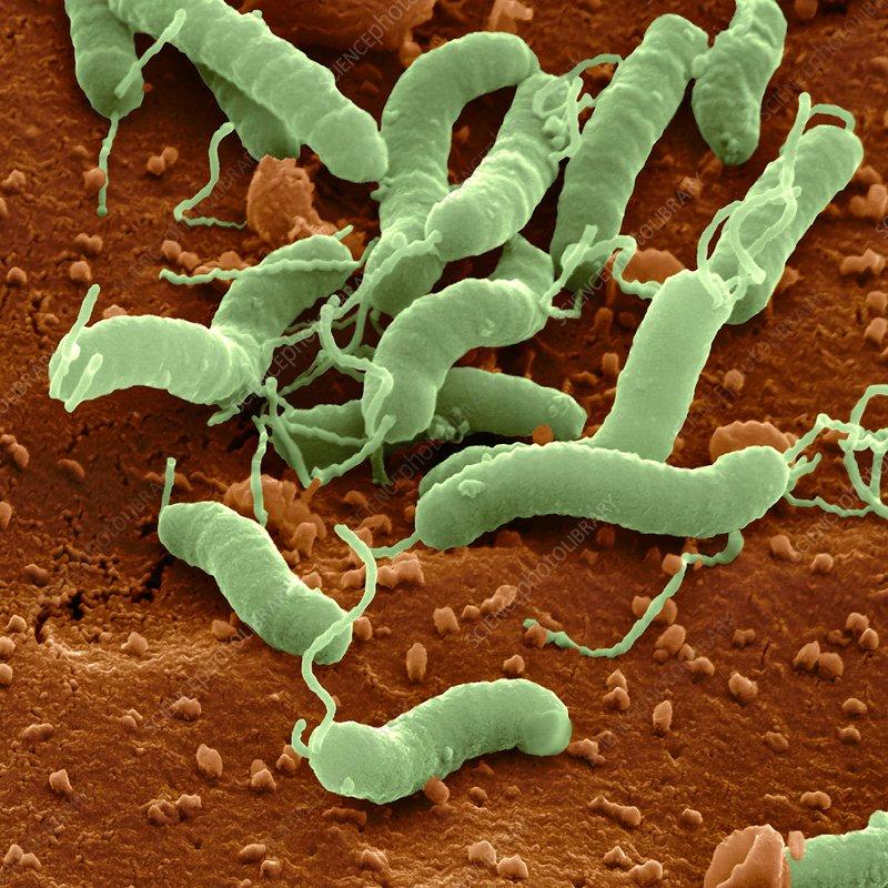 Helicobacter pylori bacteria sem stock image c001 2059 science photo library - Bacterie helicobacter pylori ...